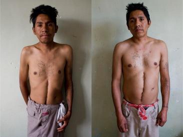 Adicto IV antes y después. Chimalhuacán, EDOMEX 2011.